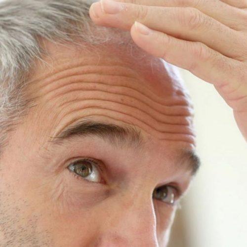 Autotrapianto di capelli