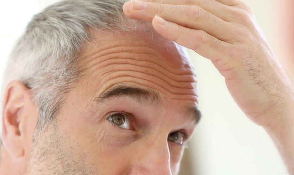 Autotrapianto di capelli - Trapianto Capelli